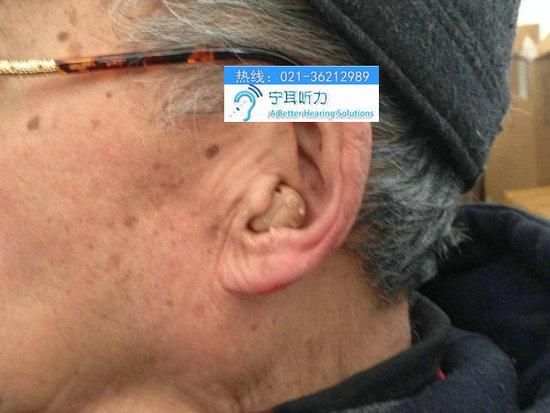 上海瑞声达悦莺耳内式助听器