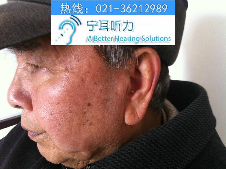 上海西门子助听器专卖店