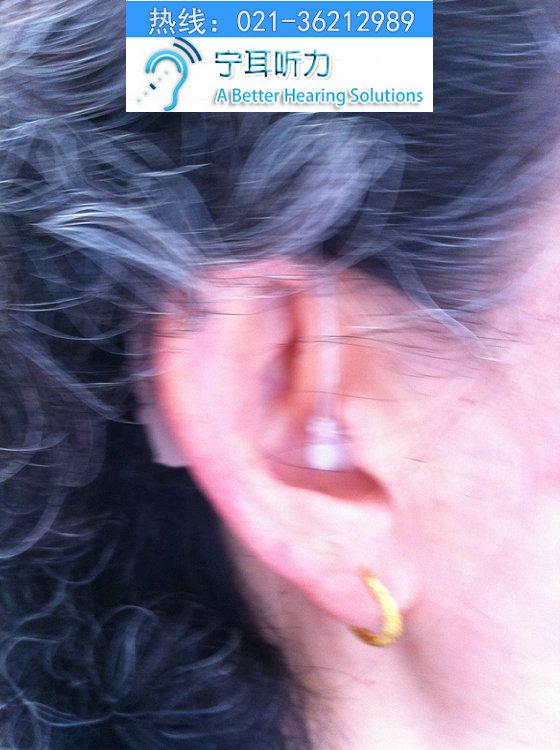 上海西门子助听器价格