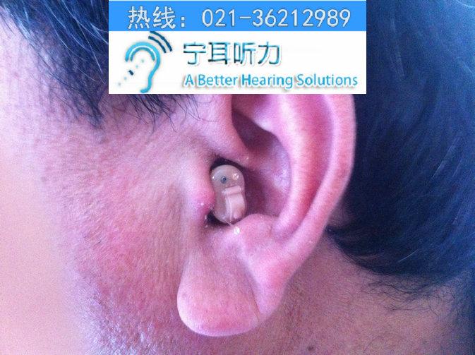 上海西门子隐形助听器