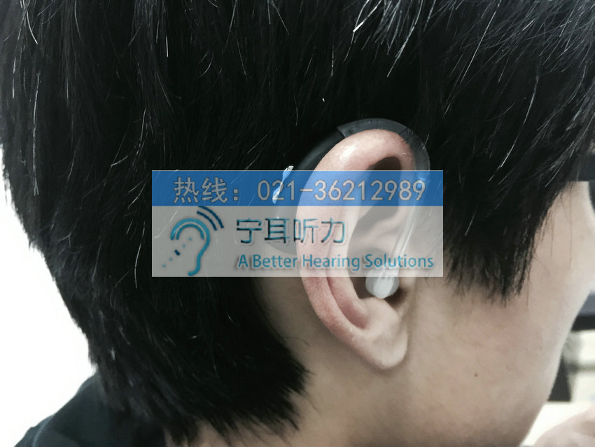 上海哪有卖老人定制耳蜗助听器的