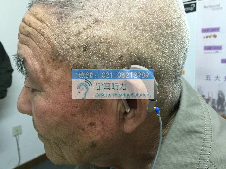 上海瑞声达助听器老人佩戴效果