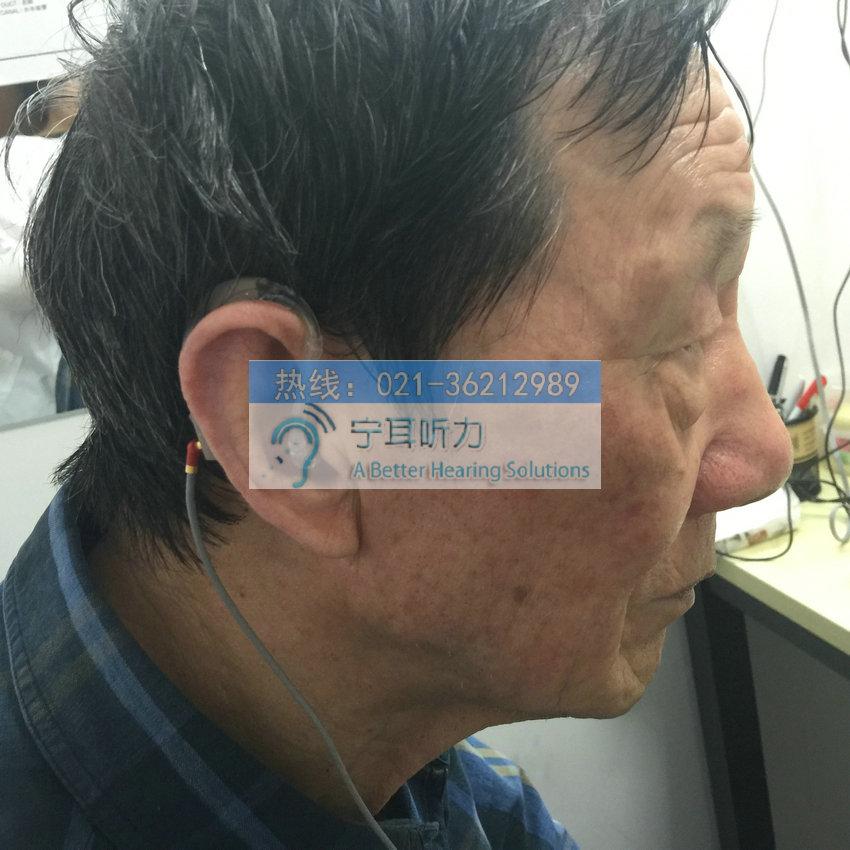上海奥迪康助听器打折
