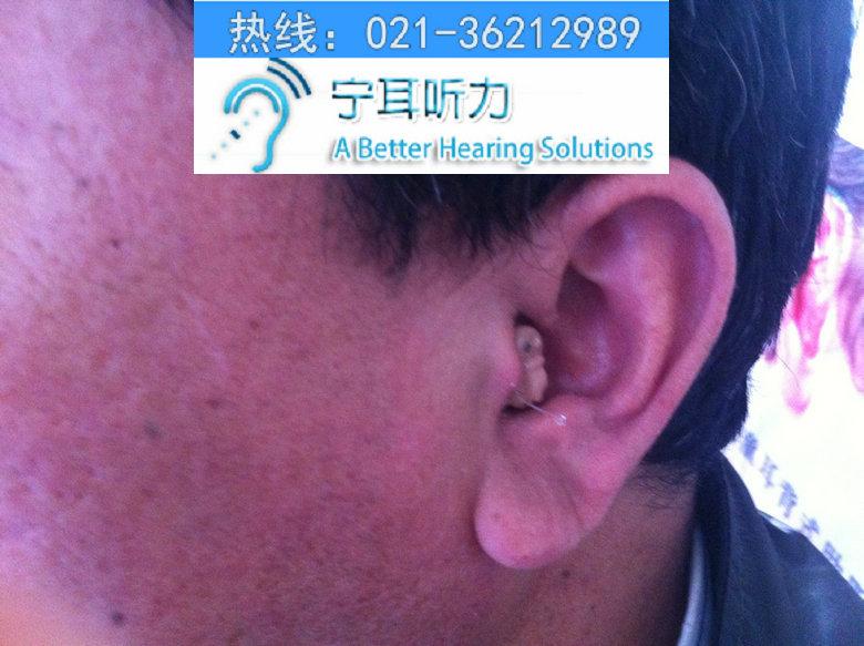 上海深耳道式助听器