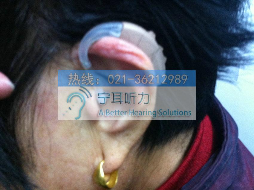 上海西门子萨克助听器佩戴效果图
