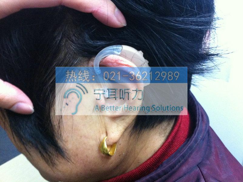 上海西门子助听器萨克斯sirion p耳背式助听器