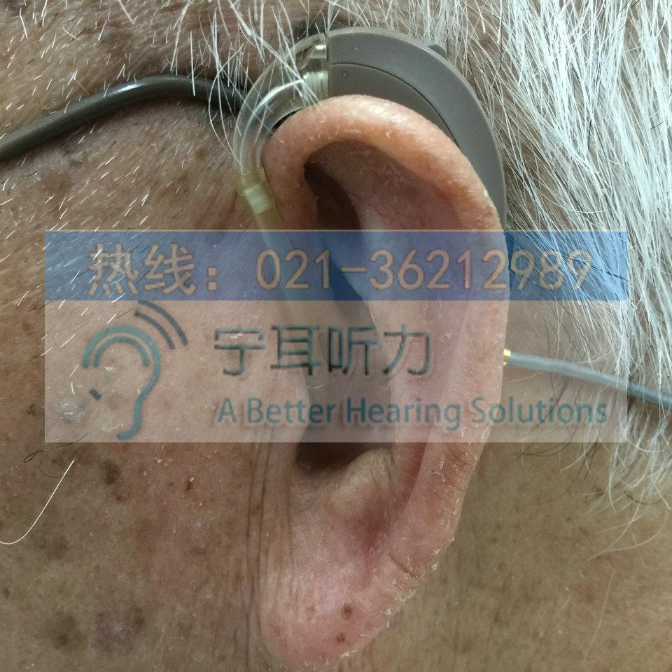 峰力探戈梦助听器多少钱