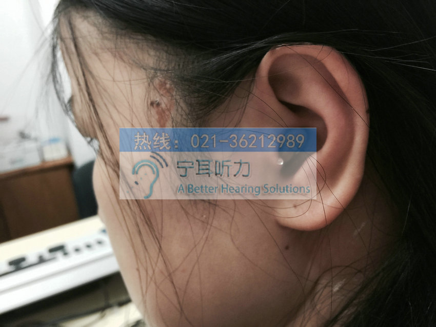 上海峰力美人梦助听器