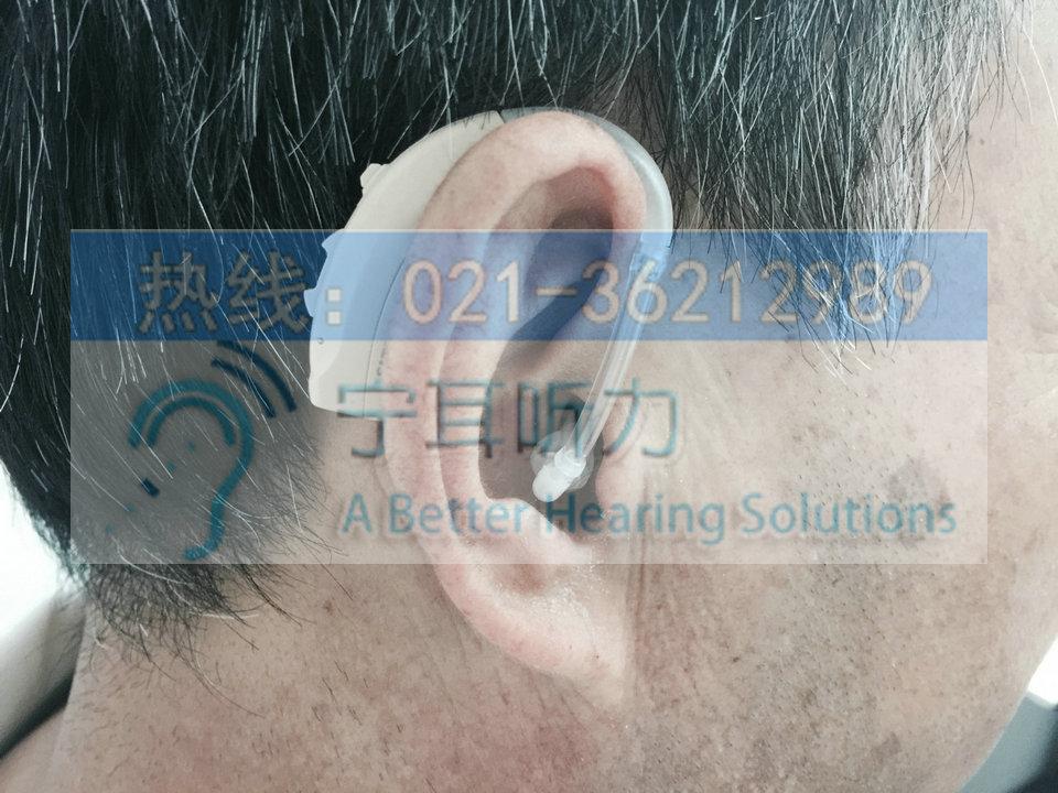 上海助听器价格