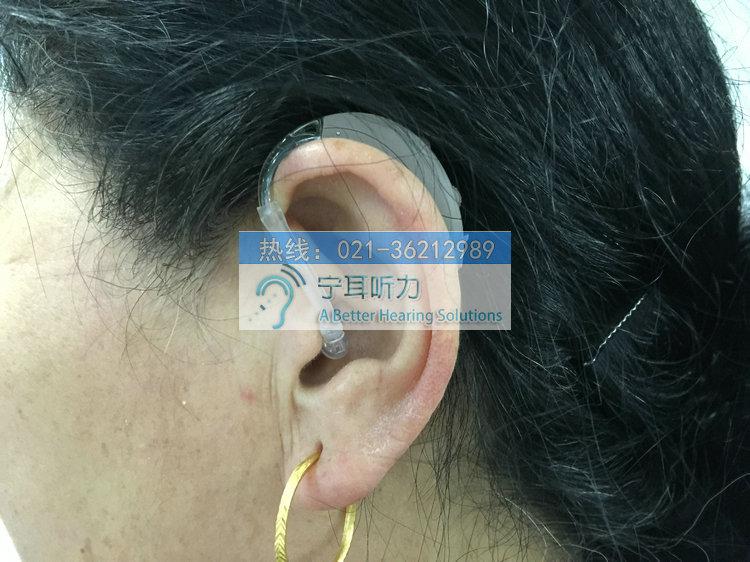 上海虹口足球场助听器折扣价格