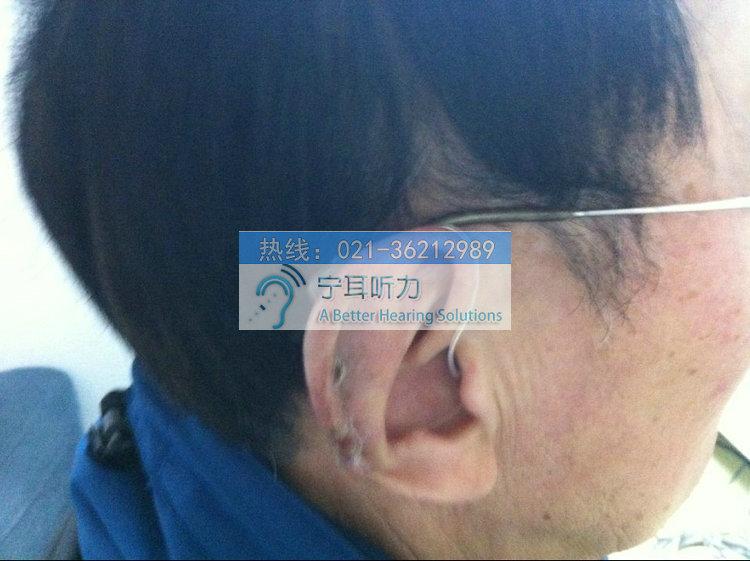 上海峰力芭蕾梦助听器哪买好?