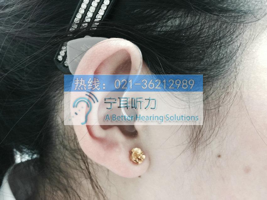 上海哪买西门子萨克斯助听器便宜