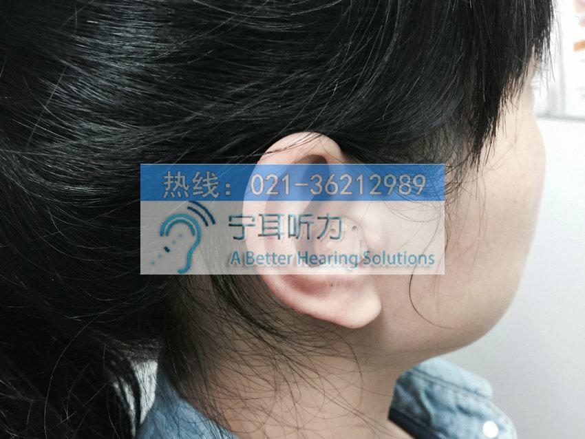 上海哪买西门子交响乐助听器便宜