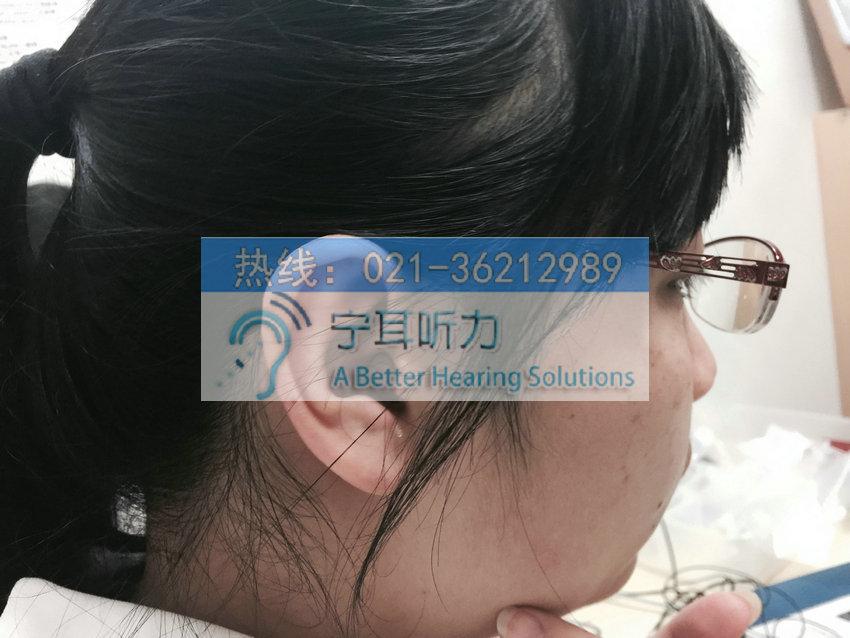 上海峰力奥笛梦智通助听器价格