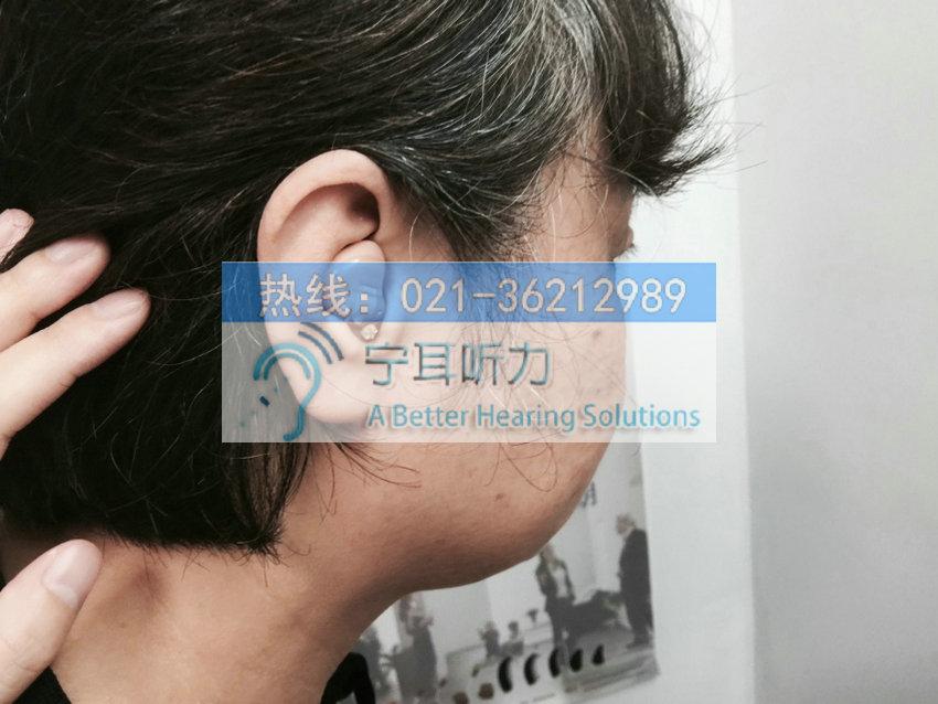 上海美人鱼梦助听器多少钱