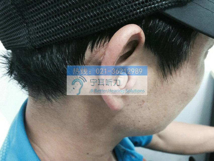 上海闸北助听器价格表