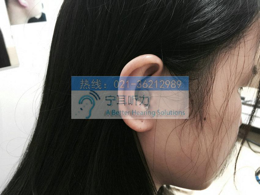 瑞声达瑞聪vo730-dpw/vo730-dp大功率深耳道式cic助听器
