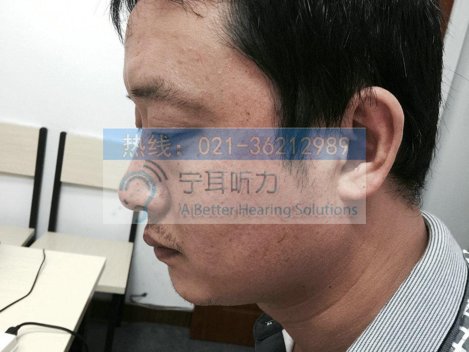 上海哪买西门子萨克斯助听器优惠