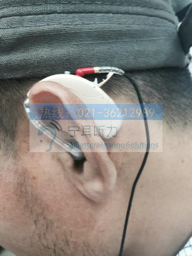 上海哪买普陀瑞声达助听器优惠
