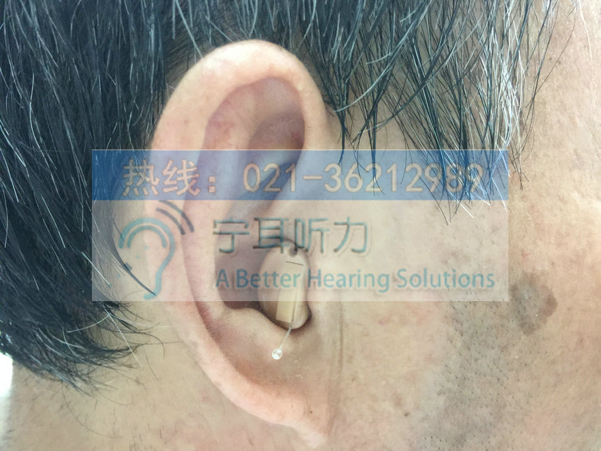 浦东斯达克助听器上海哪买合算