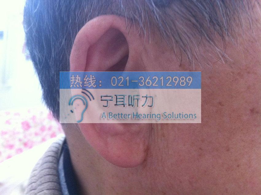 西门子银河系开放耳助听器上海哪买合算