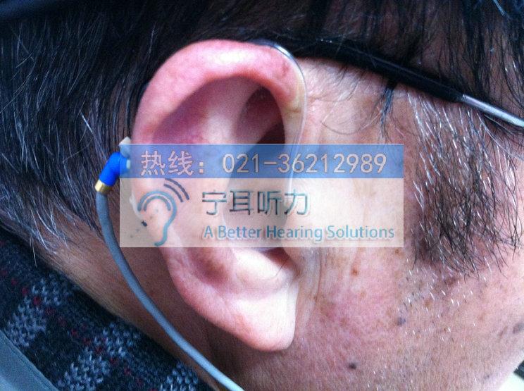 上海西门子银河系开放耳助听器多少钱