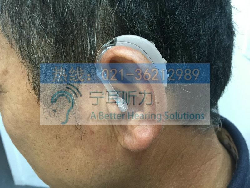 浦东定制式耳蜗助听器好吗