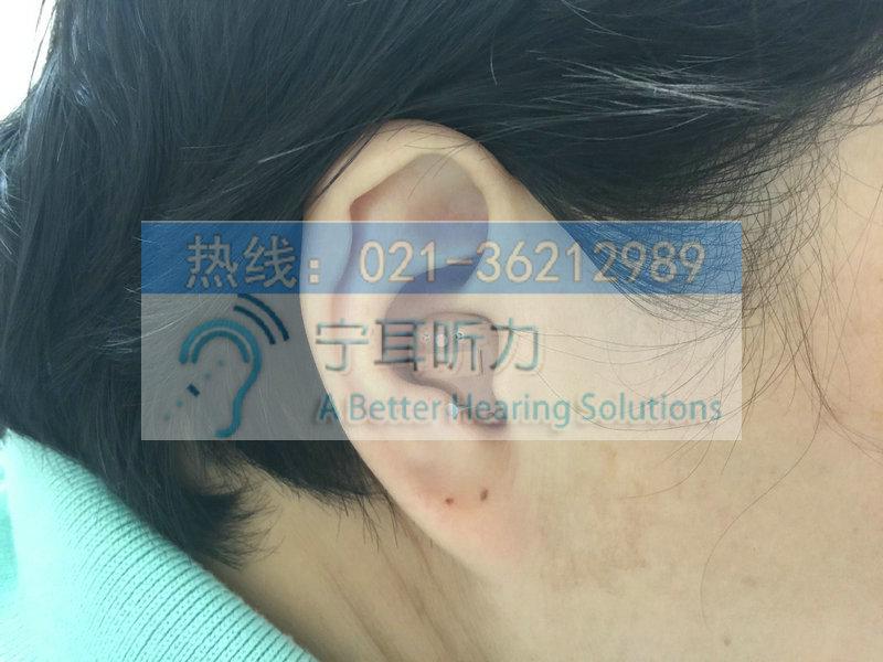 普陀中老年人助听器多少钱