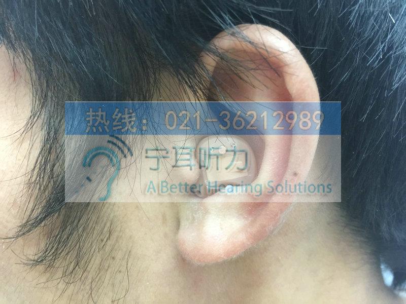 浦东定制式耳蜗助听器价格表