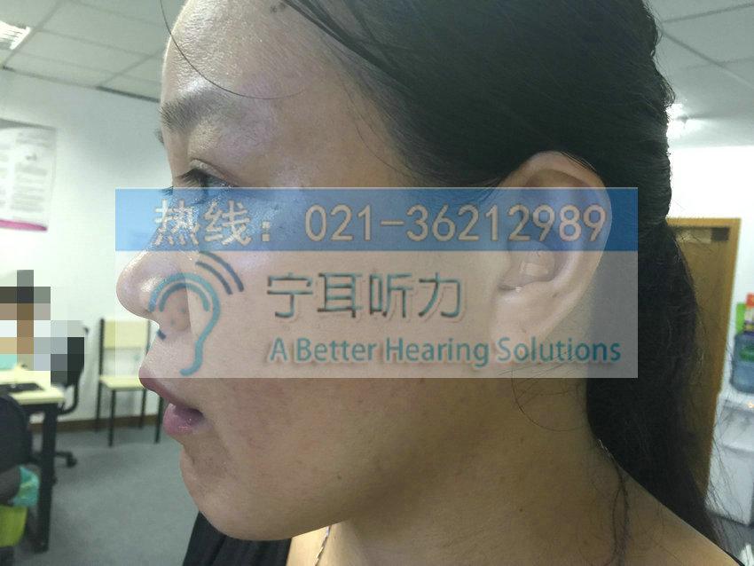 宝山助听器价格上海哪买便宜