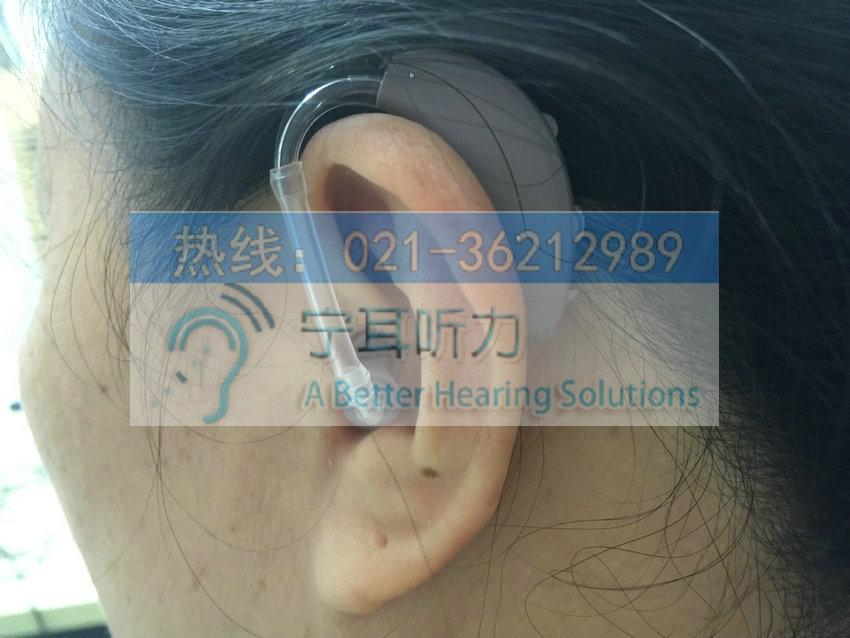 静安峰力助听器价格表