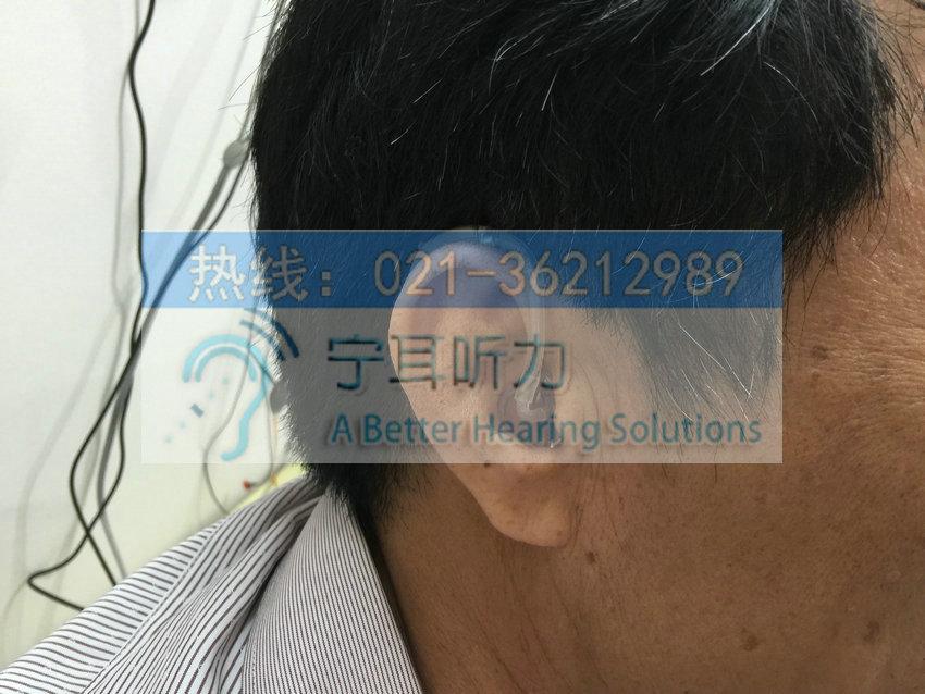静安峰力助听器上海哪有卖