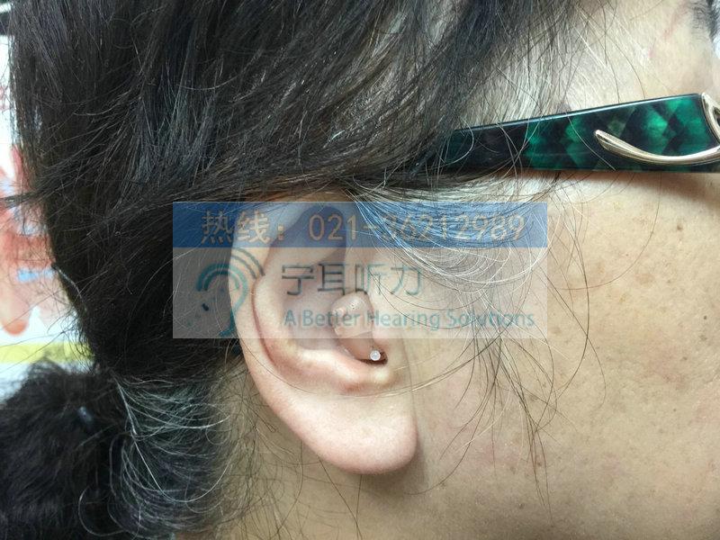 静安峰力助听器价格