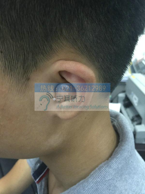 上海瑞声达智高助听器价格