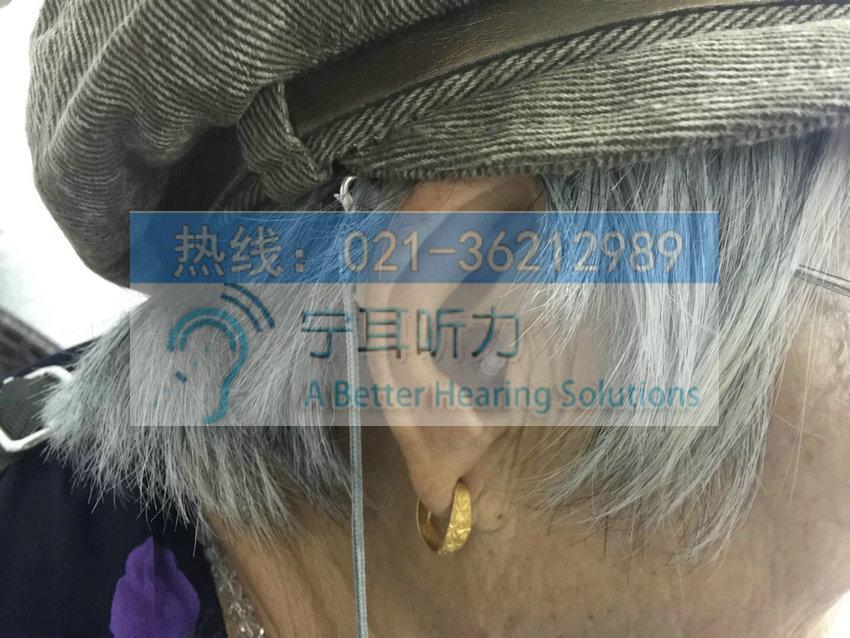 上海松江助听器上海哪有卖