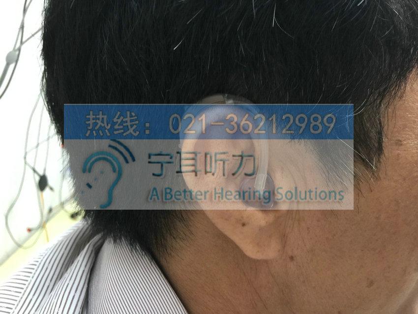 徐汇助听器价格表