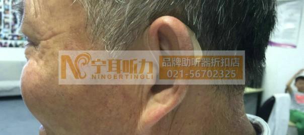 上海中德助听器多少钱