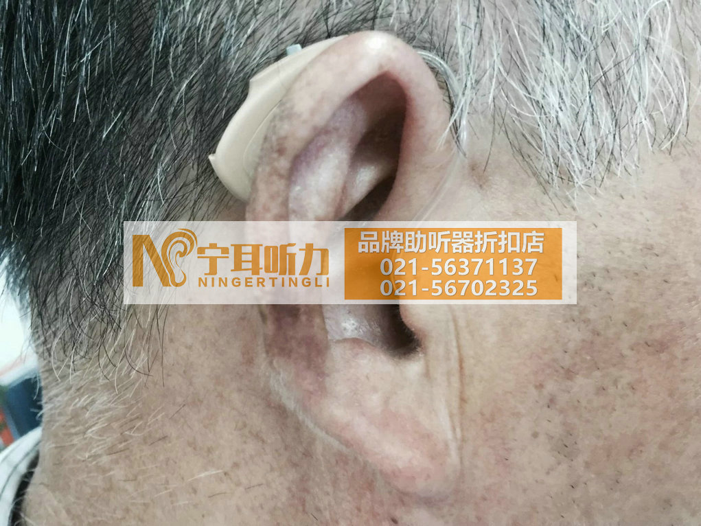 上海瘫痪助听器价格表