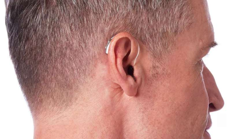 斯达克Livio助听器瑞克机RIC 312 2000性能,宁耳好优惠